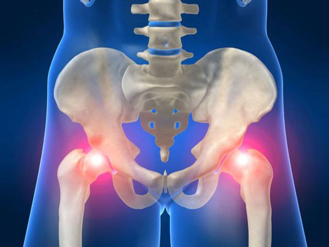 Можно лечить артроз тазобедренного сустава программа реабилитации и лечения коленных суставов