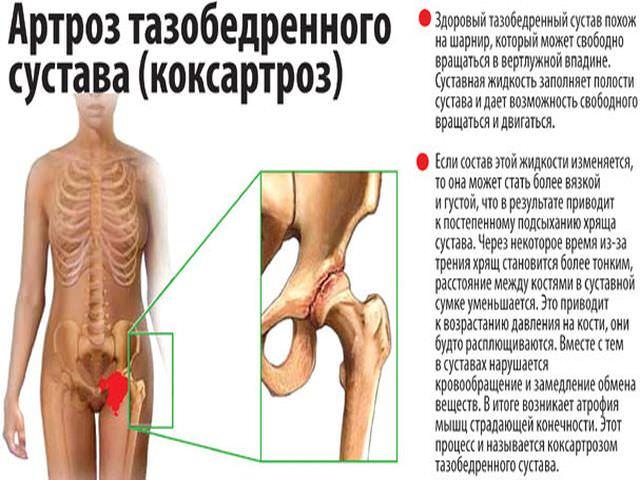 Здоровый многоосный сустав и коксартроз
