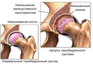 Иглоукалывание при коксартрозе