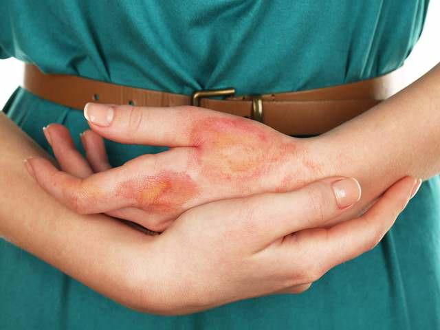 Зарубцевавшаяся кожа на руке после термического ожога