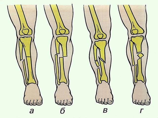 Переломы голеностопа со смещениями