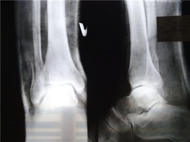 Снимок перелома щиколки