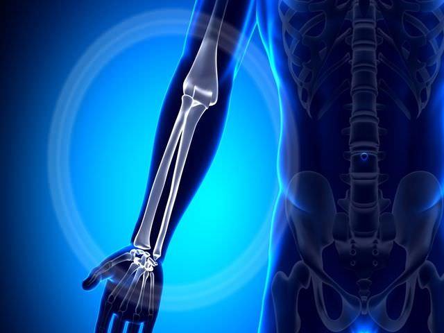 лечение перелома лучевой кости в типичном месте