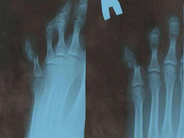 Снимок перелома мизинца на ноге