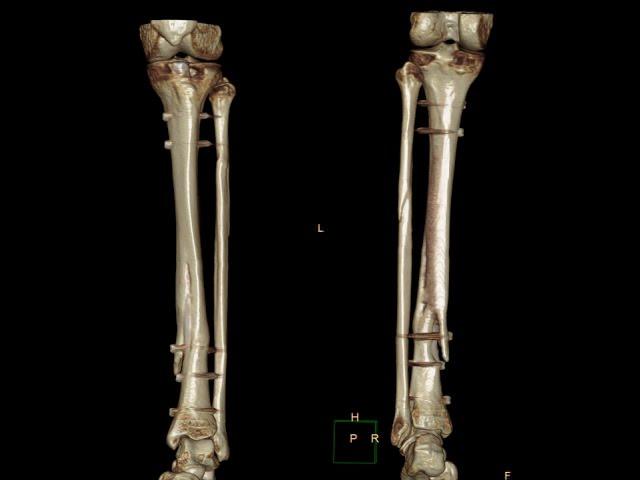 Кости нижних конечностей при повреждении