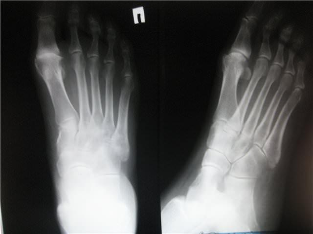 Рентген снимок перелома ножных костей