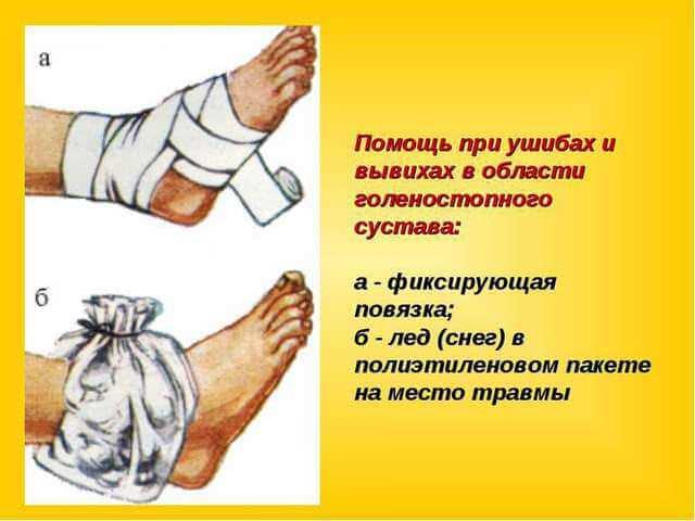 Помощь при ушибе ноги в домашних условиях