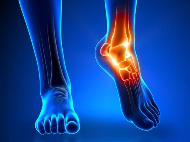 Вывих щиколотки на ноге