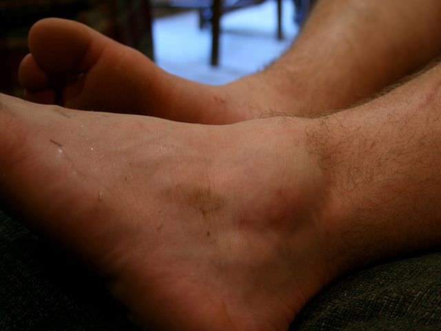 смещение голеностопа
