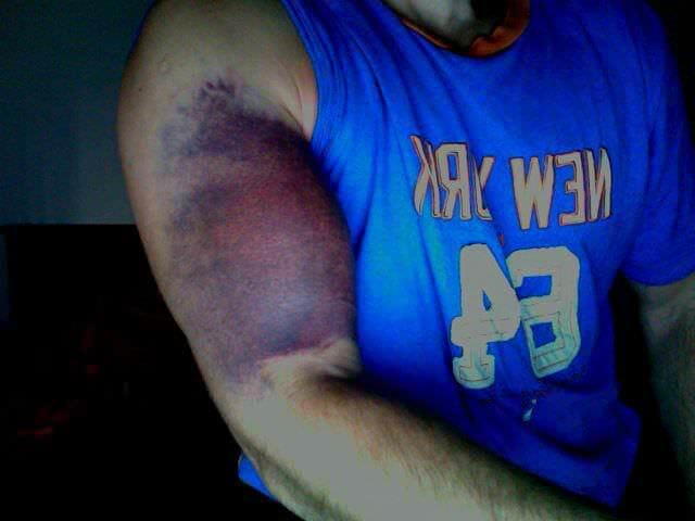 Если порваны связки на плече что делать