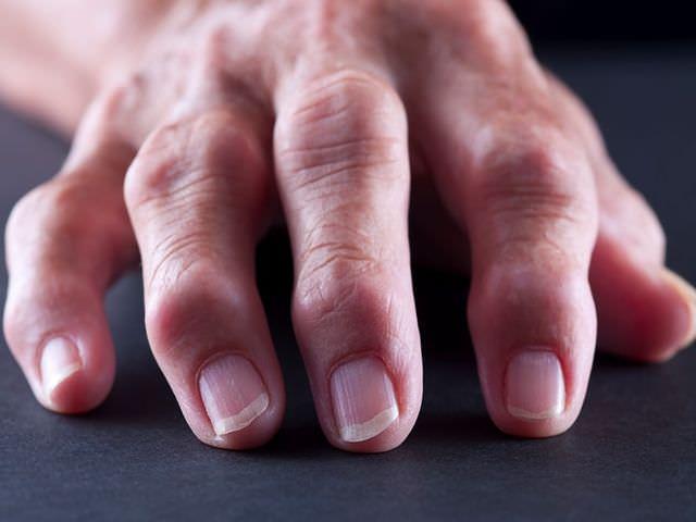как лечить заболевание пальцев рук