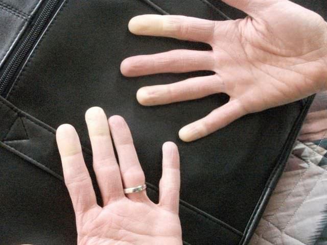 причины и лечение артроза пальцев рук