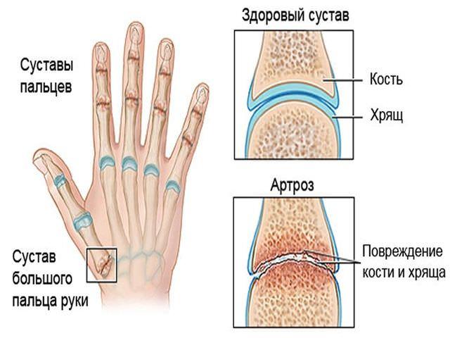 почему возникает заболевание суставов пальцев рук
