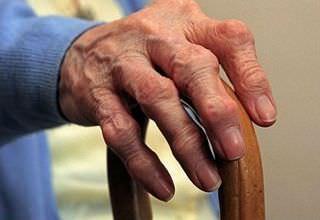Артроз пальцев рук симптомы и лечение фото и видео