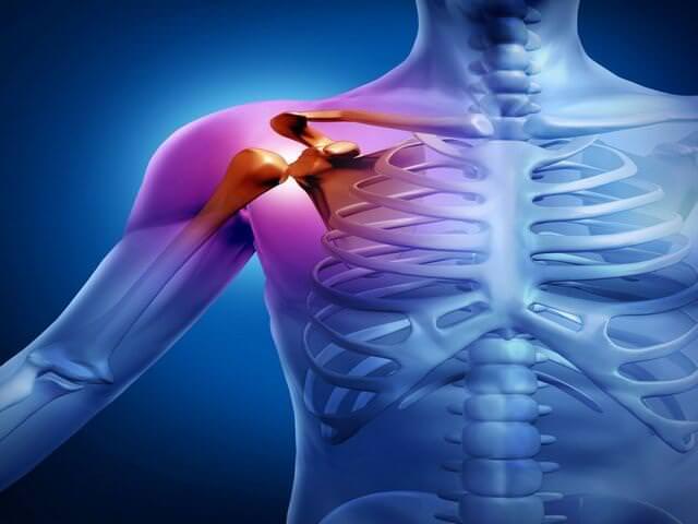 Артроз плечевого сустава симптомы и лечение фото
