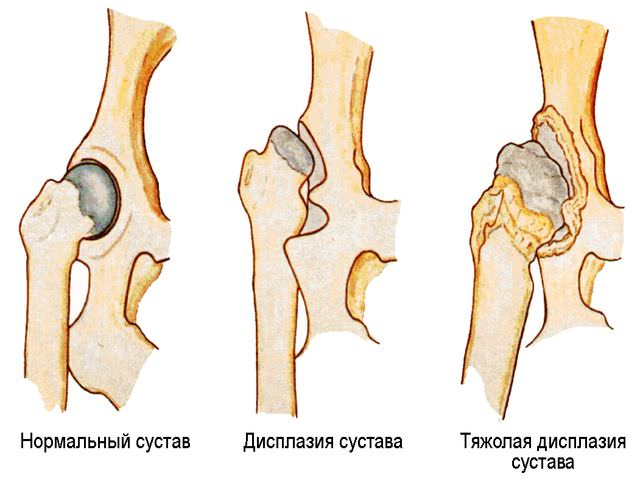 Лечение подвывиха тазобедренного сустава у взрослых накопление жидкости в коленном суставе