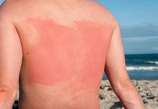 Термическая травма спины