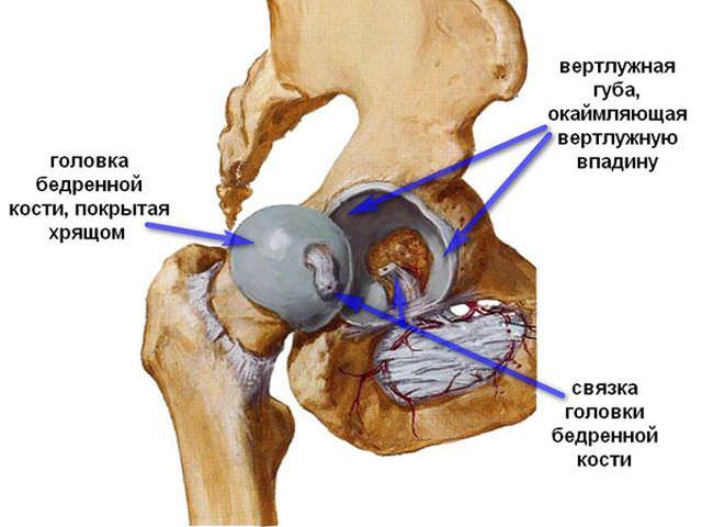 как вылечить остеоартроз тазобедренного сустава