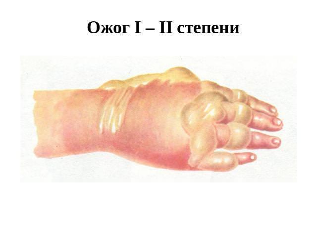 Пример травмы