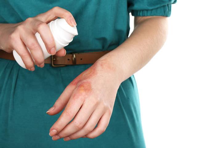 Обработка обожженной руки