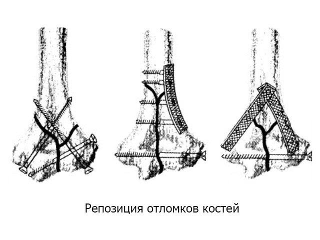 Репозиция отломков костей