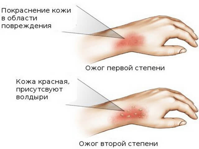 kak-razvodyat-russkih-devchonok-na-seks