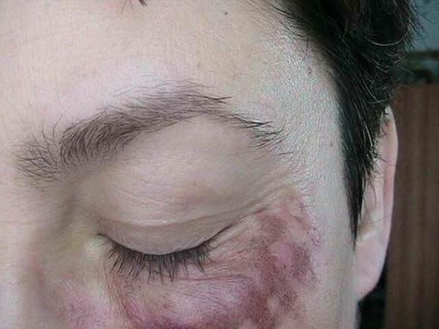 Ожог кожи вокруг глаза