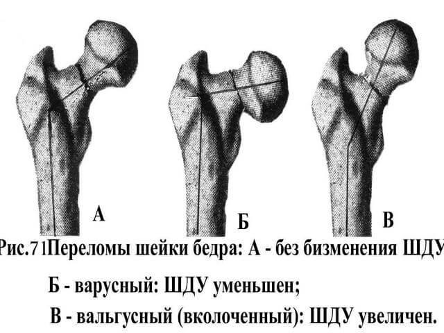 Разновидность перелома шейки бедренной кости