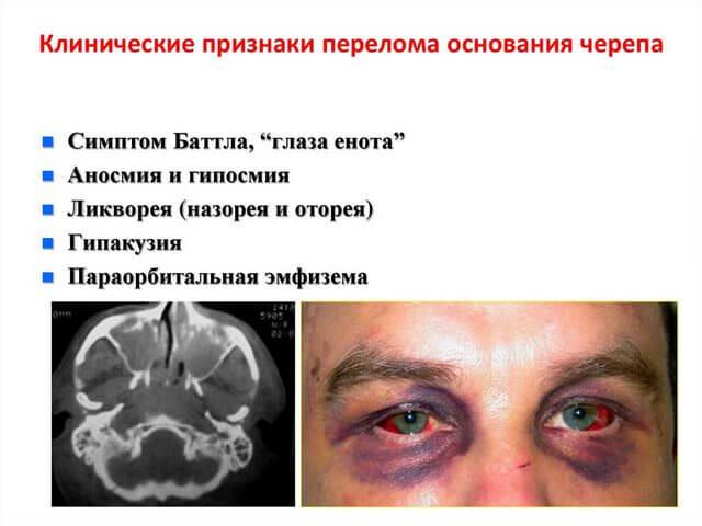 Закрытые травматические повреждения головы