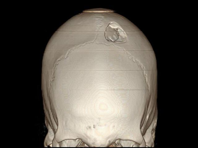 смещение костей при травме головы