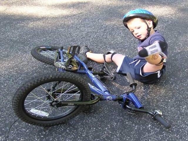 перелом ключицы у ребенка 3