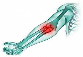 Перелом локтевого сустава, отростка кости со смещением, разработка локтя