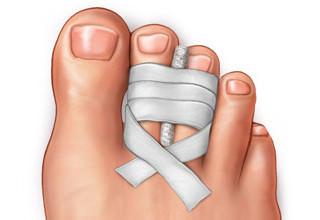 Перелом безымянного пальца на ноге симптомы фото
