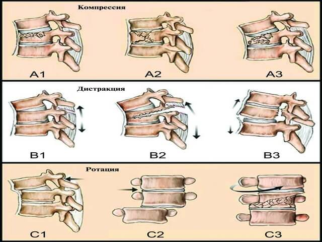 какие бывают переломы позвоночника