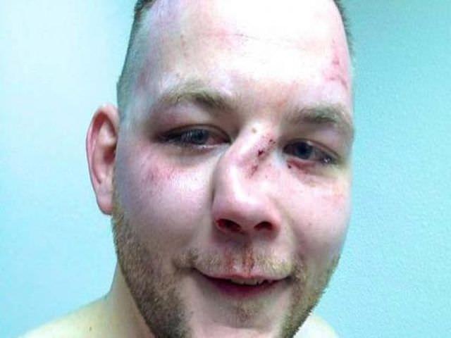 сильное разрушение перегородки носа