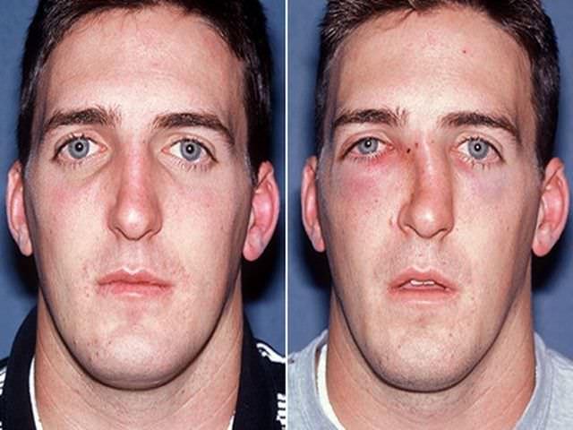 Перелом носа какие могут быть последствия фото и видео