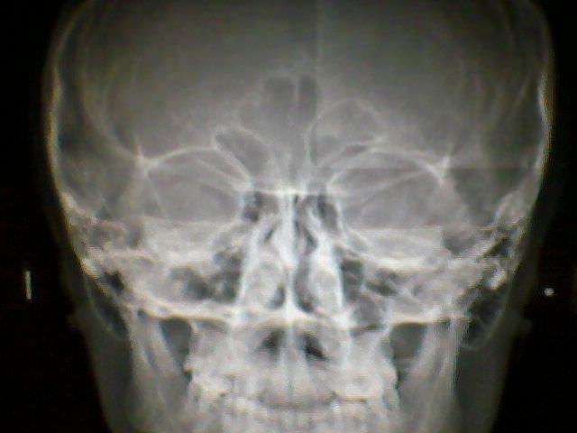 рентген носа после перелома