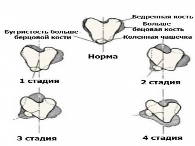 Стадии деформирования колена
