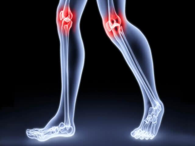 Больные коленные суставы