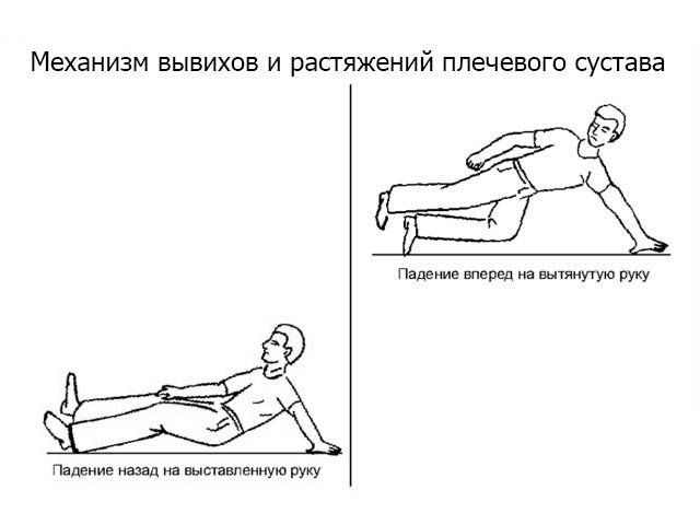 Как укрепить плечевой сустав в домашних условиях