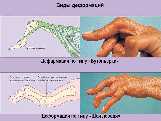 растяжение связок пальца руки симптомы
