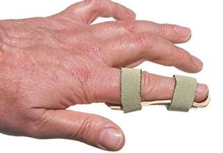 Порвано сухожилие на пальце руки как лечить