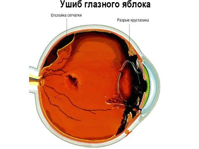 Травма глазного яблока