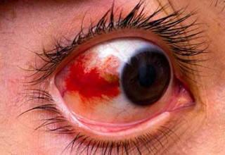 Что делать при ушибе глаза первая помощь и лечение