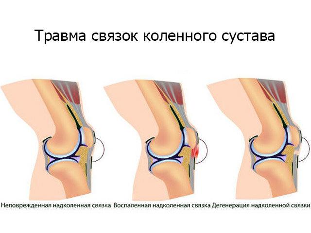 Изображение - Что делать при ушибе коленного сустава ushib-kolena-1