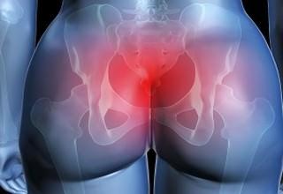 Ушиб копчика симптомы и последствия у женщин лечение