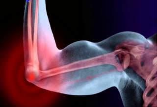 Ушиб локтевого сустава - симптомы и лечение