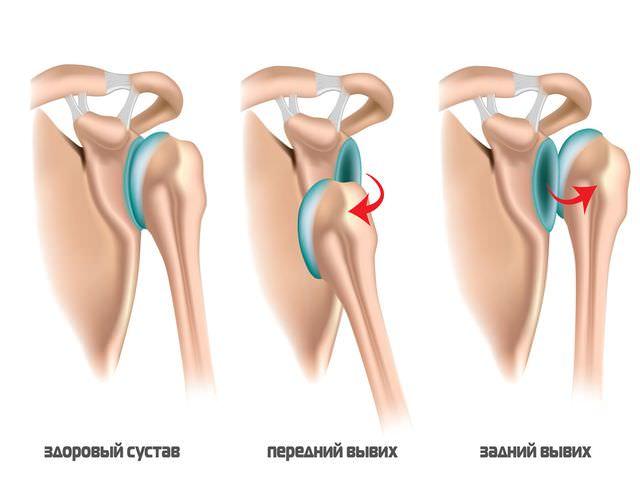 Ушибы плечевого суставов лечение в домашних условиях