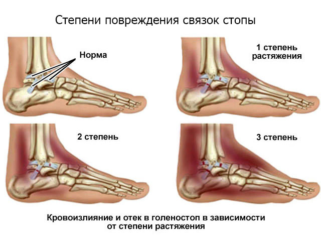 Схема травмирования ноги