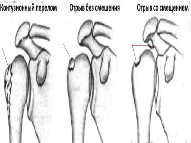 Перелом большого бугорка плечевой кости как происходит лечение